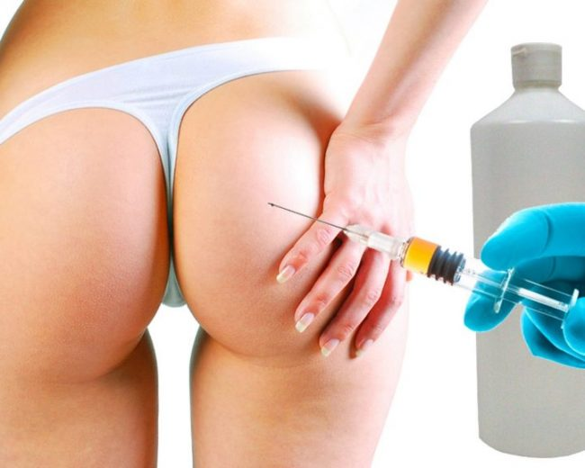 1000CC HYDROGEL BUTTOCK INJECTIONS